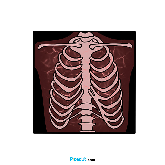 X Ray Clipart X Ray Clip Art Cartoon Style Png Image For Free Download Picscut